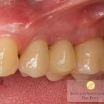 I denti su impianti sono indistinguibili dai denti naturali