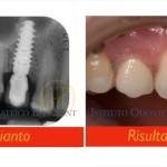 Impianto dente singolo active