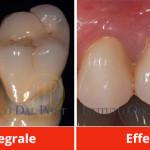 dentiera-dentista-belluno