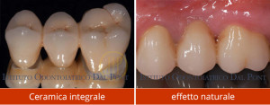 Protesi dentaria - Studio Dentistico Dal Pont - Centro di implantologia leader in Italia