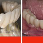 protesi-dentali-dentista-belluno