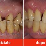 protesi-e-dentiere-belluno-dentista-belluno