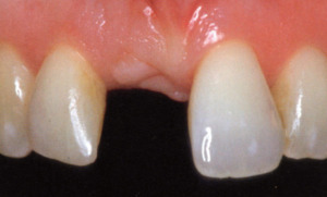 Sito guarito in seguito all'estrazione dentale