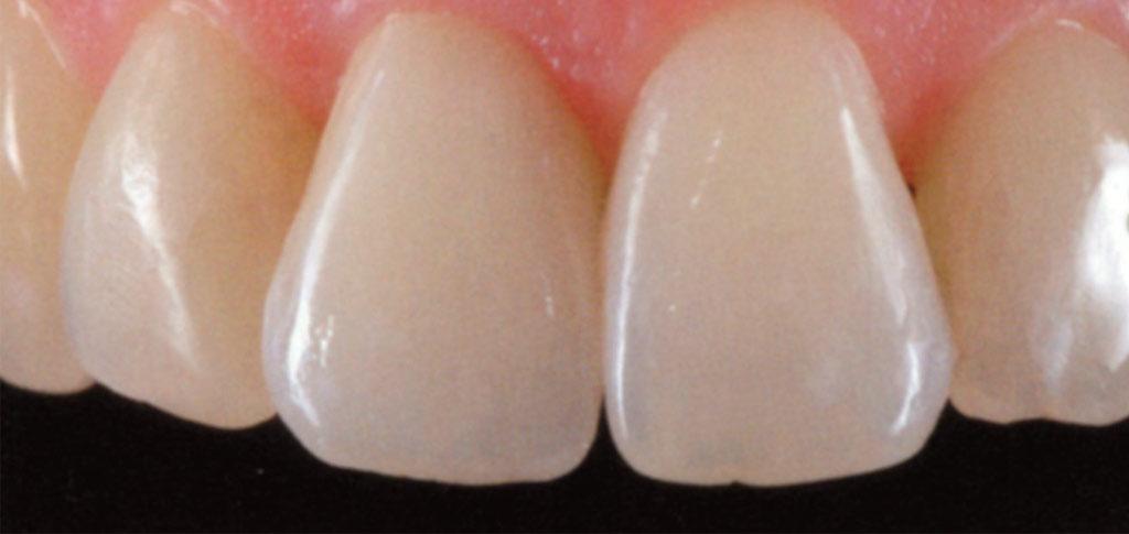 Eccellenti risultati estetici e funzionali nei casi di perdita anche di un singolo dente